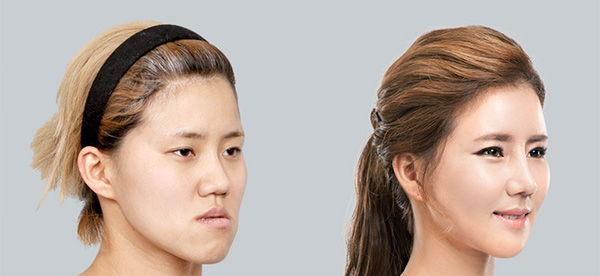 مراحل ارتودنسی و جراحی فک