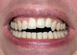 عوارض و مشکلات ارتودنسی دندان