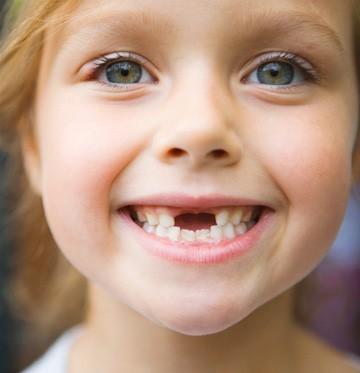 نتیجه تصویری برای دندانم کو؟ کودکانه