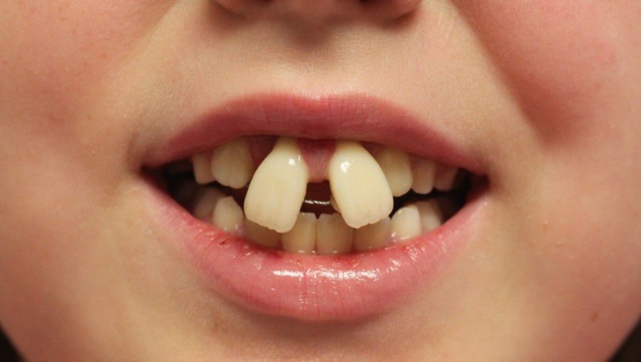 ارتودنسى دندان هاى بالا
