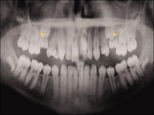 دیر افتادن دندان شیری