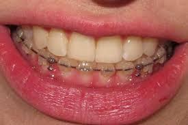 ارتودنسی دندان هاى پایین