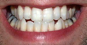 ارتودنسی دندان نیش