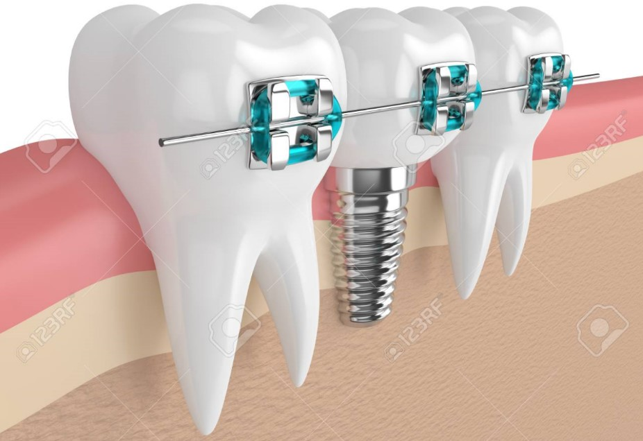 روکش دندان و ارتودنسى
