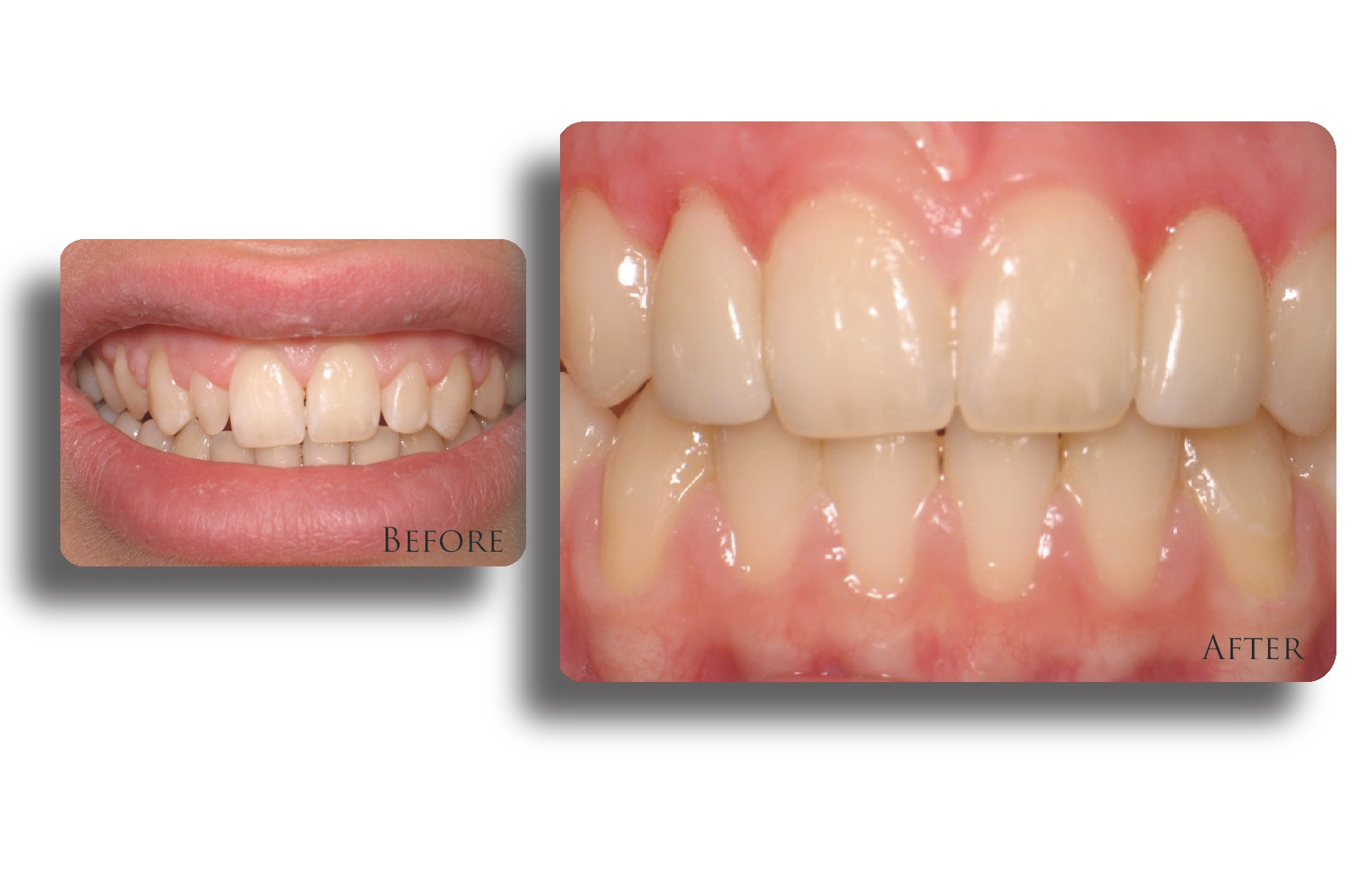 کامپوزیت دندان یا ارتودنسی؟