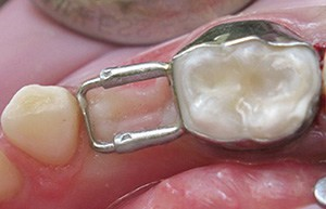زود افتادن دندان شیری