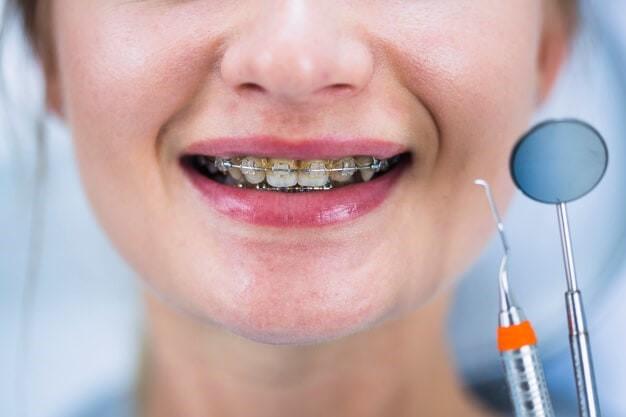 رعایت بهداشت دهان در طول درمان ارتودنسی