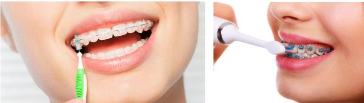 تغییر رنگ دندان ها در طول درمان ارتودنسی