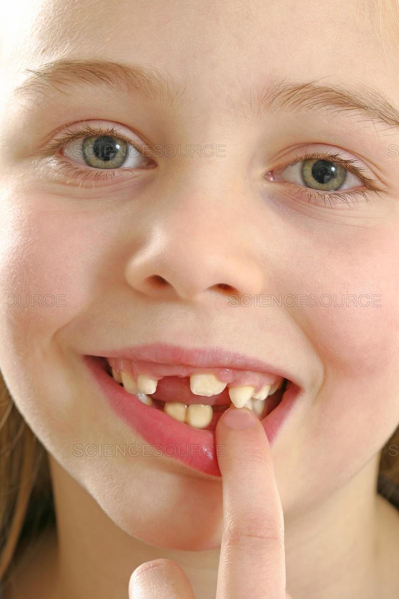 دندان درنیاوردن کودک