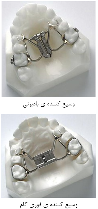 ابزارهای ارتودنسی