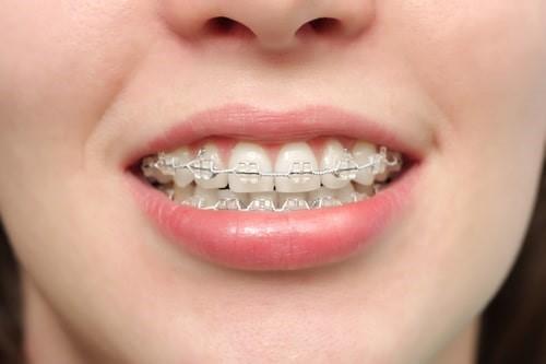براکسیسم یا دندان قروچه