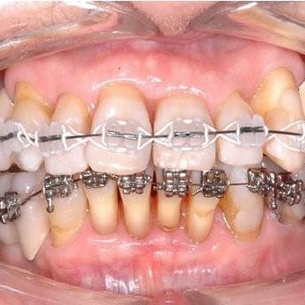 پوکی استخوان و درمان های دندانپزشکی