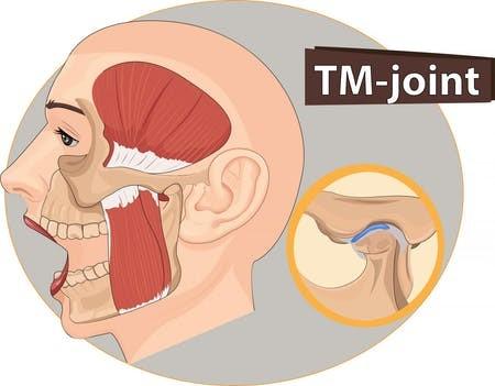 اختلالات مفصل فکی گیجگاهی و درمان ارتودنسی