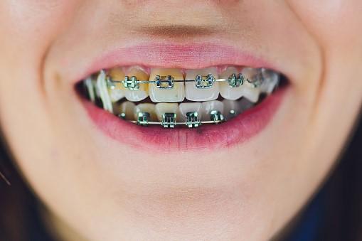 سفید کردن دندان ها پس از ارتودنسی