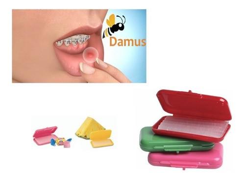 زخم دهان در طول دوره درمان ارتودنسی