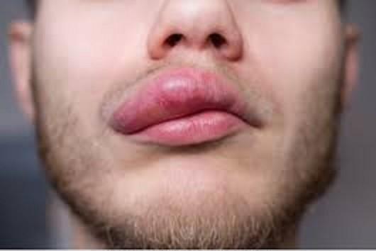 واکنش های حساسیتی شدید دهان