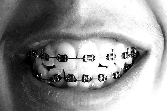 مقایسه دندانپزشکی زیبایی و درمان ارتودنسی