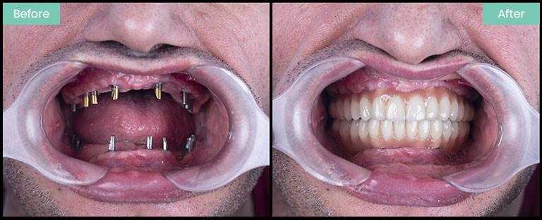 ایمپلنت جایگزین دندان از دست رفته