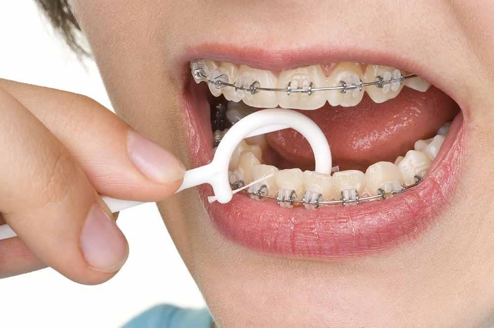 رابطه ارتودنسی و حساسیت دندانی